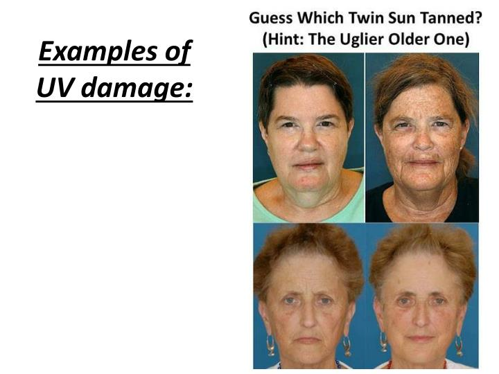 Examples of UV damage: