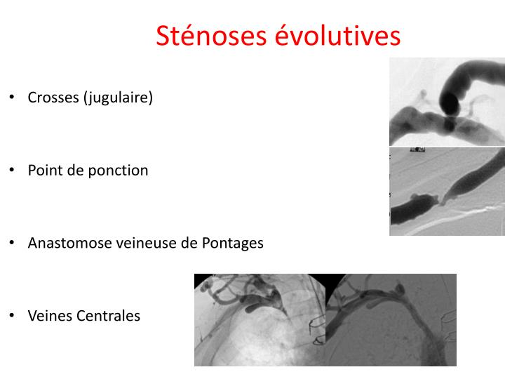 Sténoses évolutives