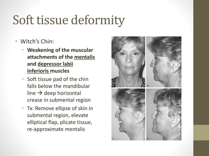 Soft tissue deformity