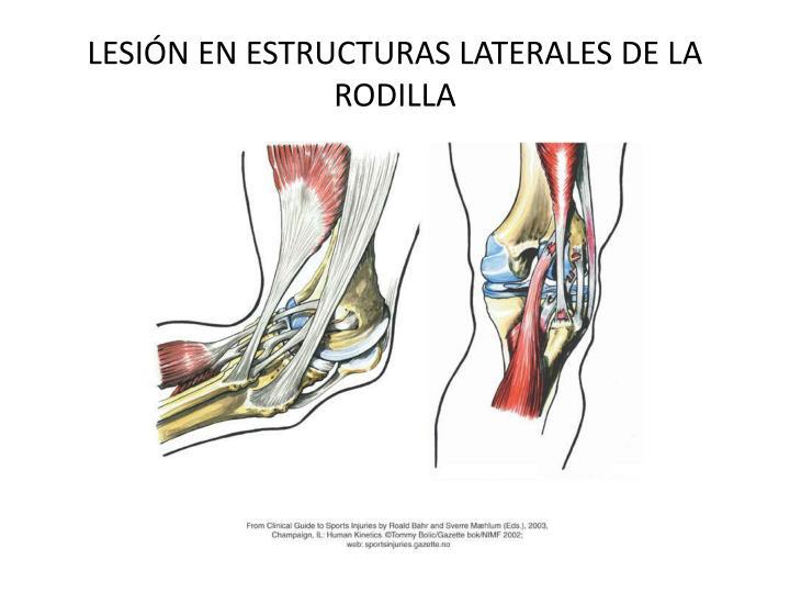LESIÓN EN ESTRUCTURAS LATERALES DE LA RODILLA
