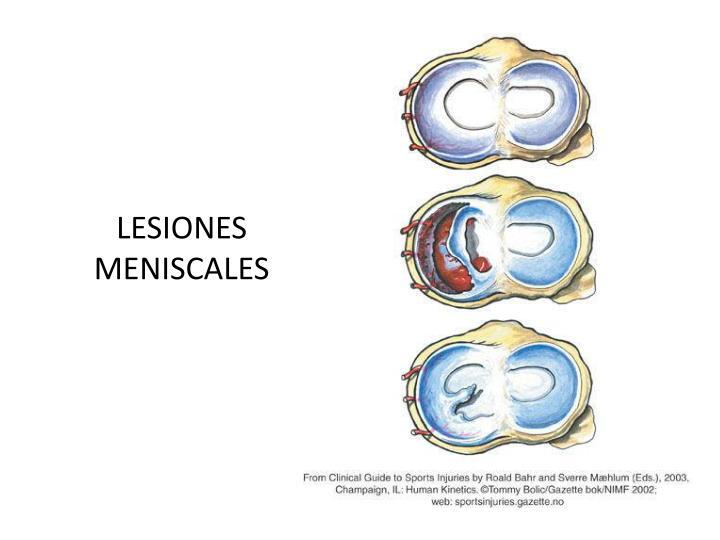 LESIONES MENISCALES