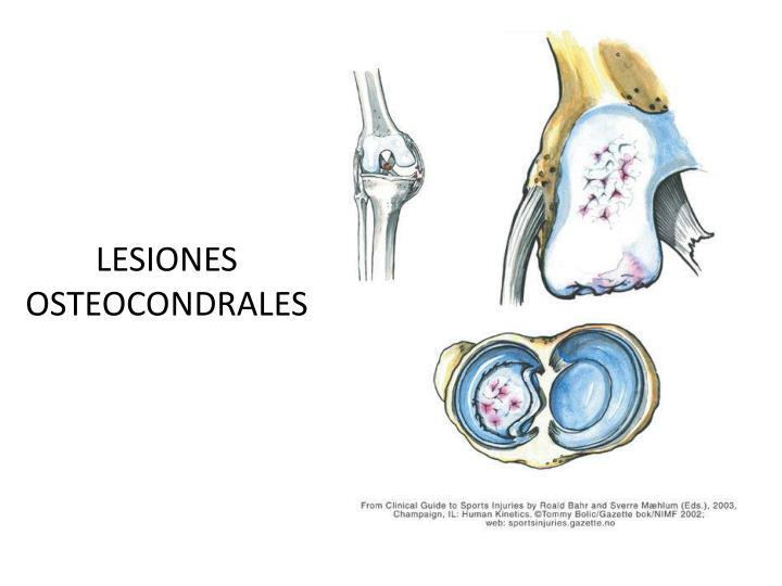 LESIONES OSTEOCONDRALES