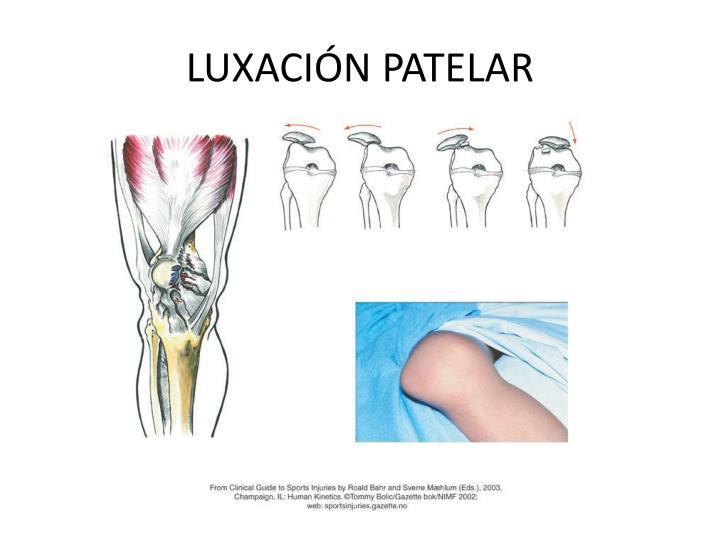 LUXACIÓN PATELAR