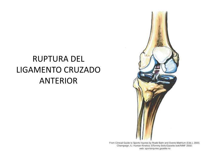 RUPTURA DEL LIGAMENTO CRUZADO ANTERIOR