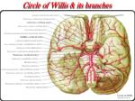 circle of willis its branches