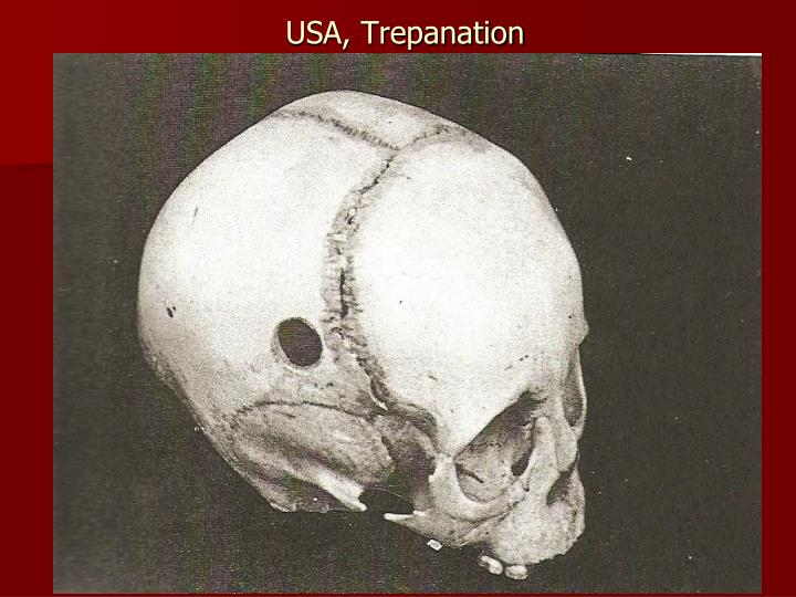 USA, Trepanation