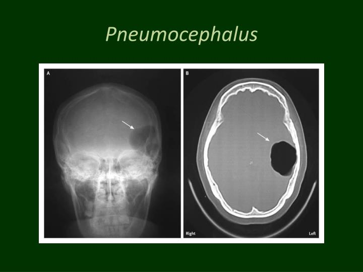 Pneumocephalus