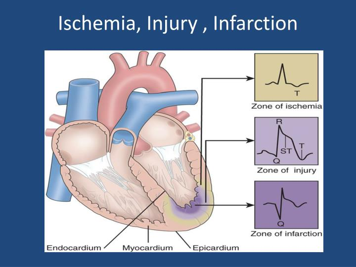 Ischemia, Injury , Infarction