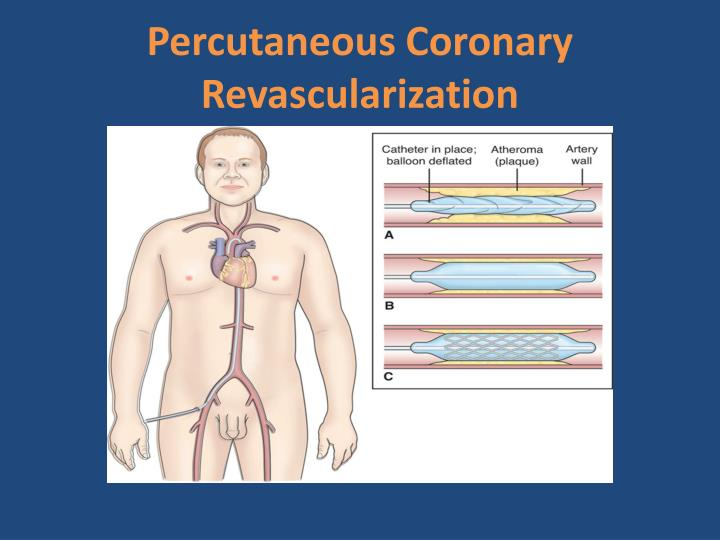 Percutaneous Coronary Revascularization