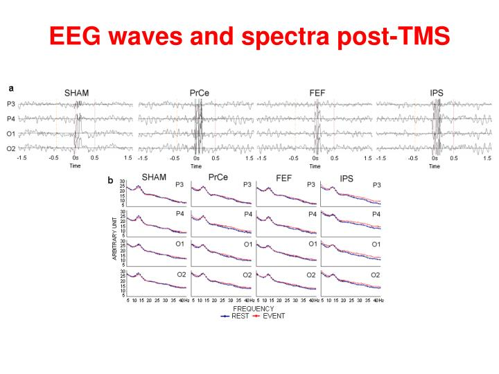 EEG waves and spectra post-TMS