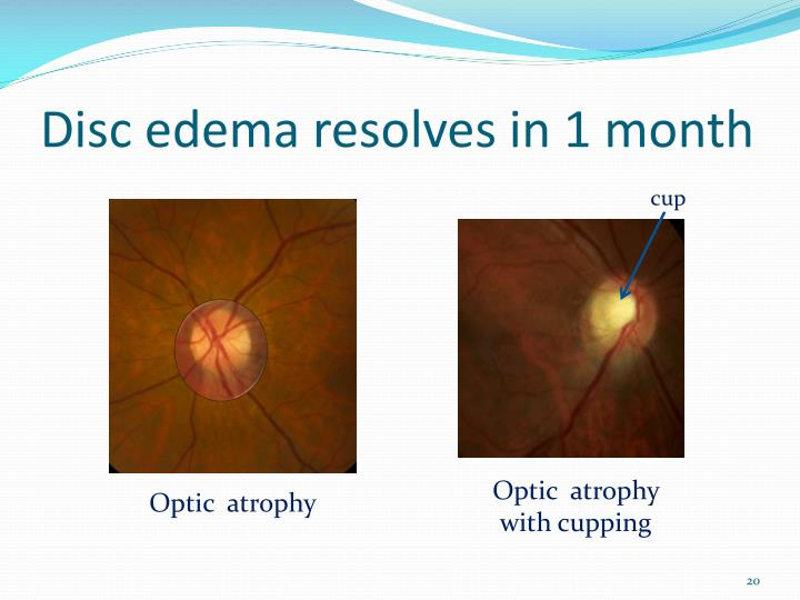 Disc edema resolves in 1 month