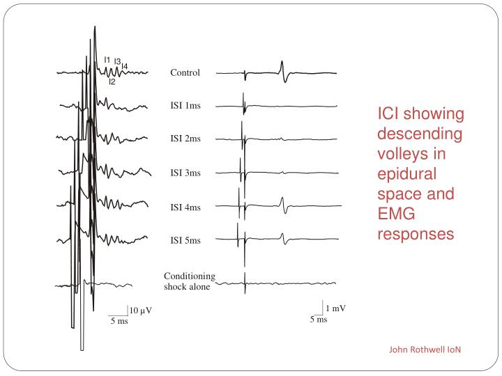 ICI showing descending volleys in epidural space and EMG responses