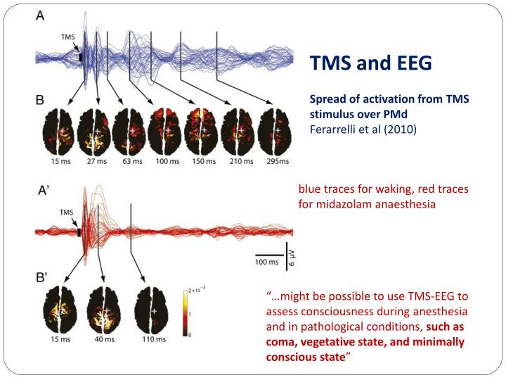 TMS and EEG