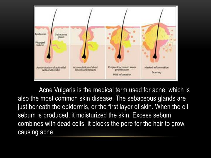 Acne Vulgaris is the medical term used for acne, which is also the most common skin disease. The sebaceous glands are just beneath the epidermis, or the first layer of skin. When the oil sebum is produced, it moisturized the skin. Excess sebum combines with dead cells, it blocks the pore for the hair to grow, causing acne.