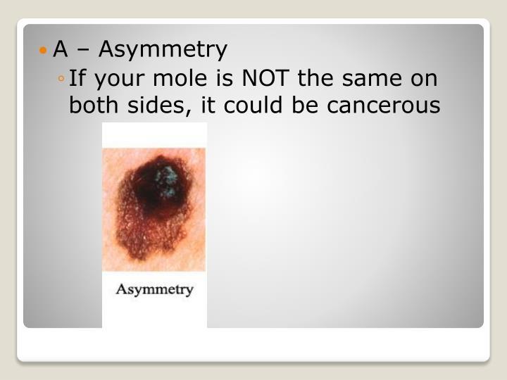 A – Asymmetry