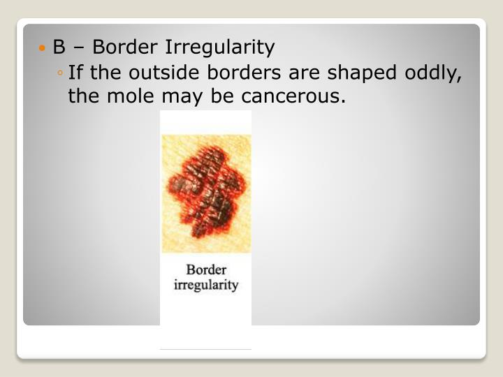 B – Border Irregularity