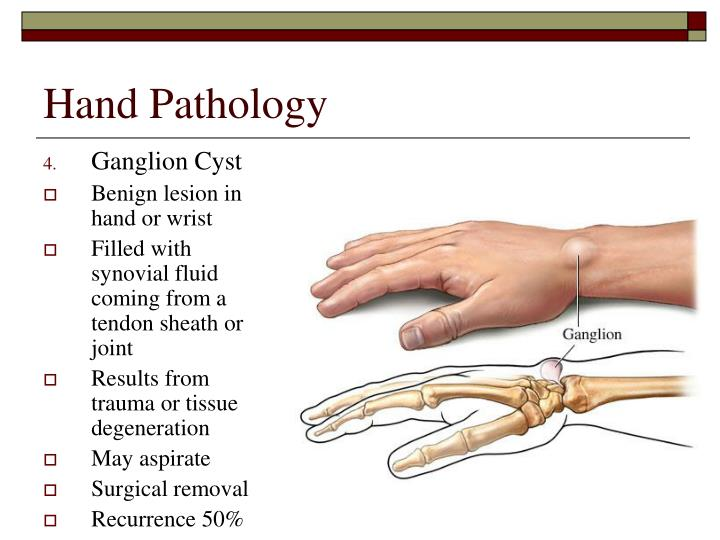 Hand Pathology