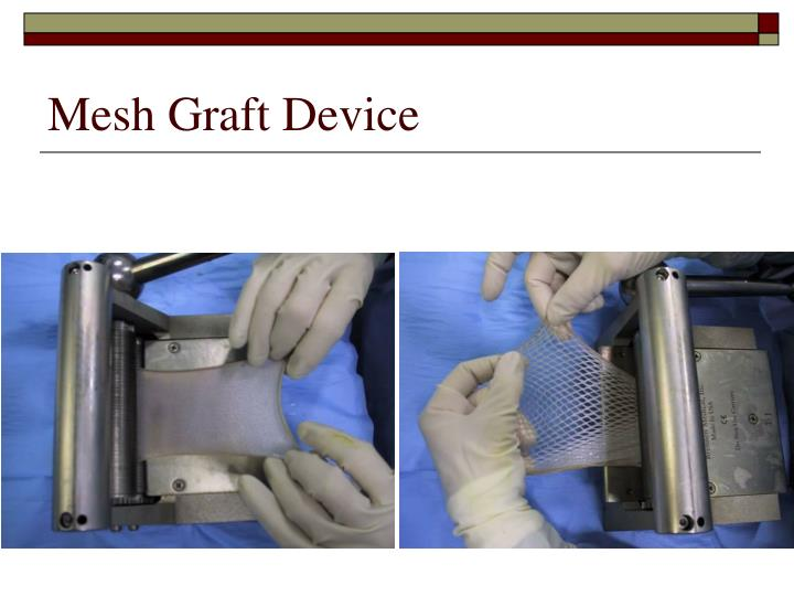 Mesh Graft Device