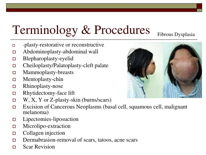 Terminology & Procedures