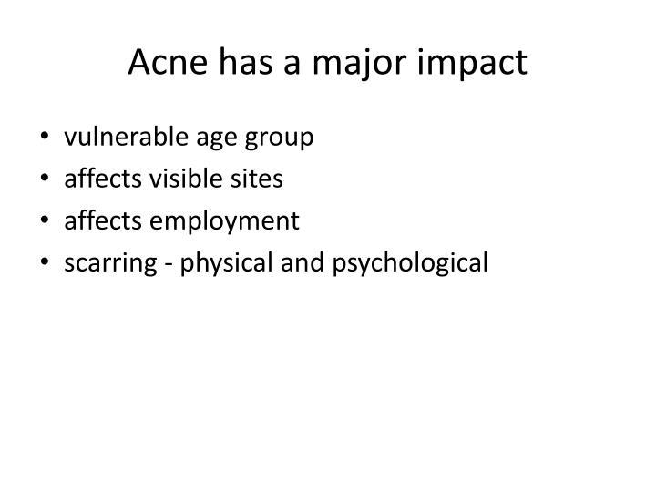 Acne has a major impact