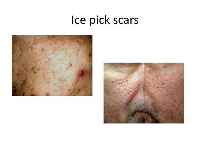 Ice pick scars