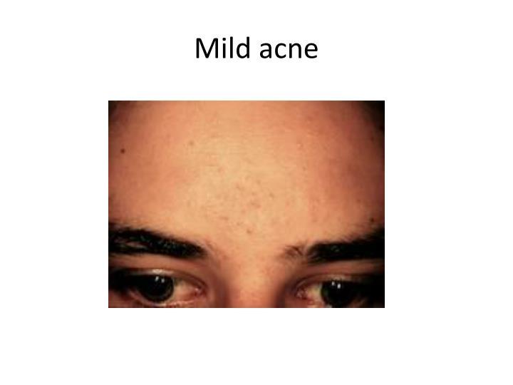 Mild acne