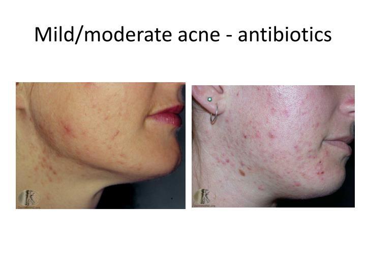Mild/moderate acne - antibiotics