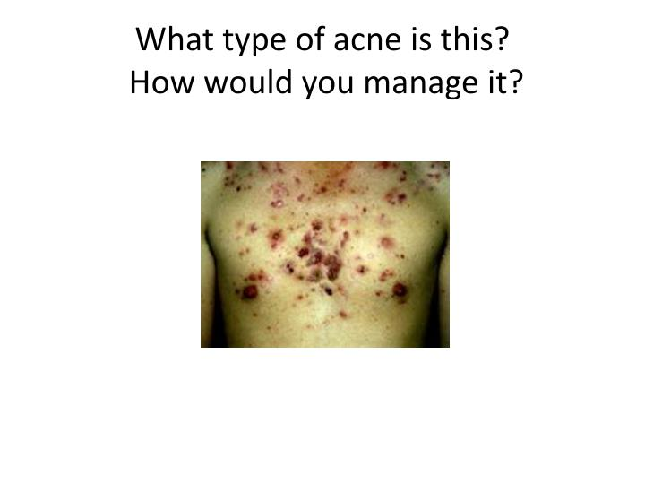 What type of acne is this?