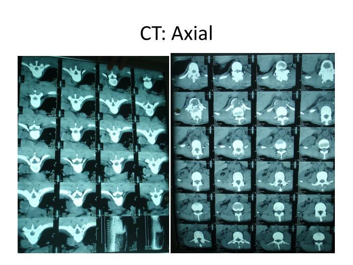 CT: Axial