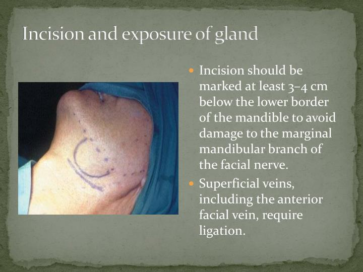 Incision and exposure of gland