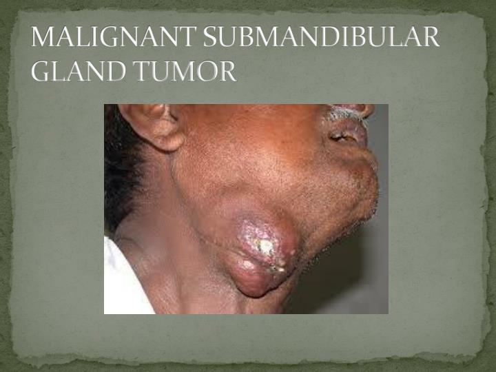 MALIGNANT SUBMANDIBULAR GLAND TUMOR