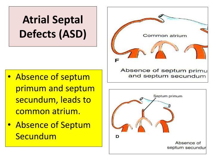 Atrial Septal Defects (ASD)