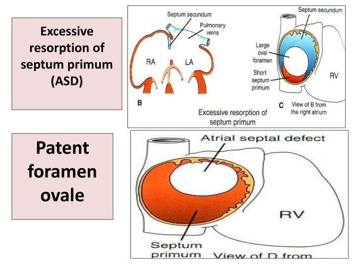 Excessive resorption of septum primum