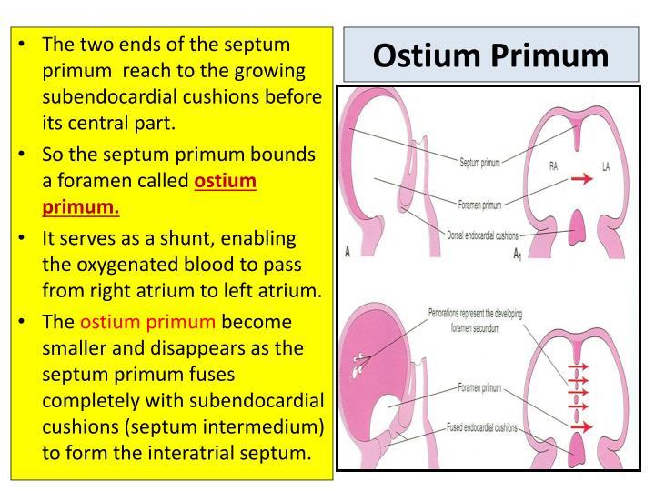 Ostium Primum