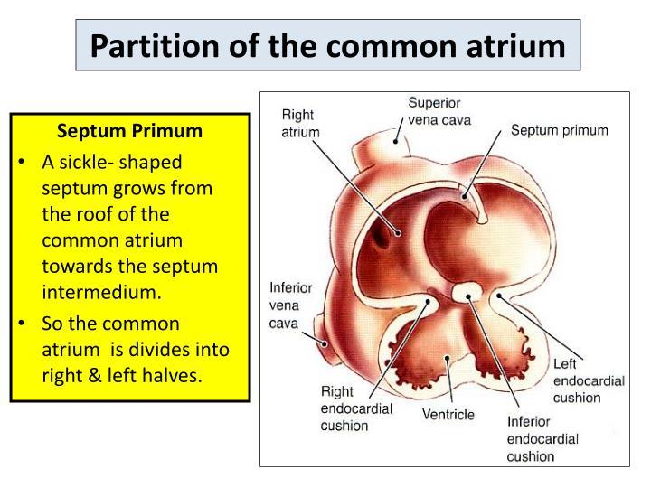 Partition of the common atrium