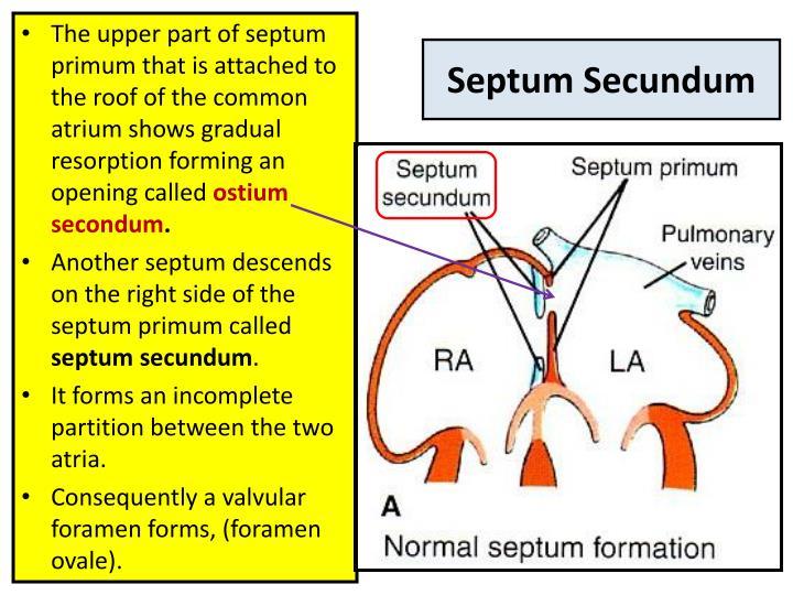Septum Secundum