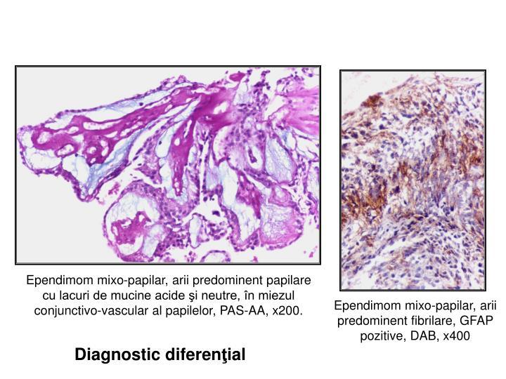 Ependimom mixo-papilar, arii predominent papilare cu lacuri de mucine acide şi neutre, în miezul conjunctivo-vascular al papilelor, PAS-AA, x200.