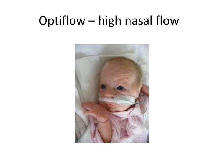 Optiflow