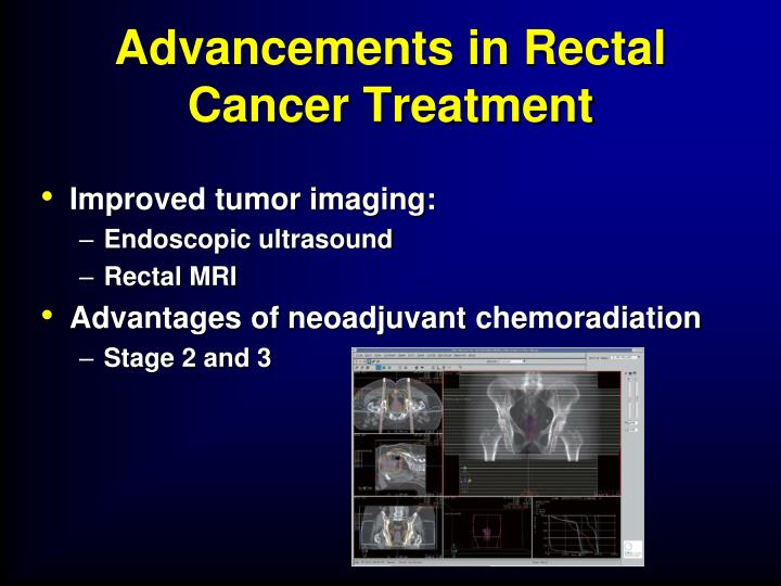Advancements in Rectal Cancer Treatment
