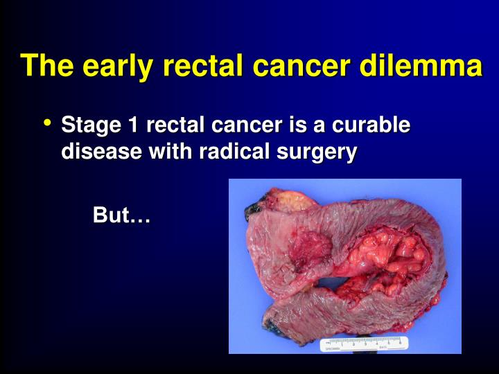 The early rectal cancer dilemma