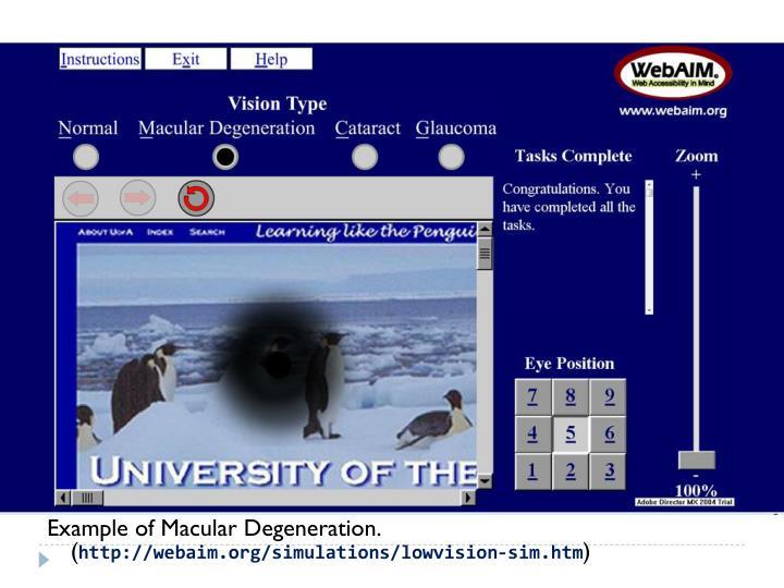 Example of Macular Degeneration. (