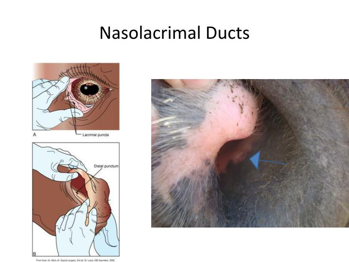Nasolacrimal Ducts
