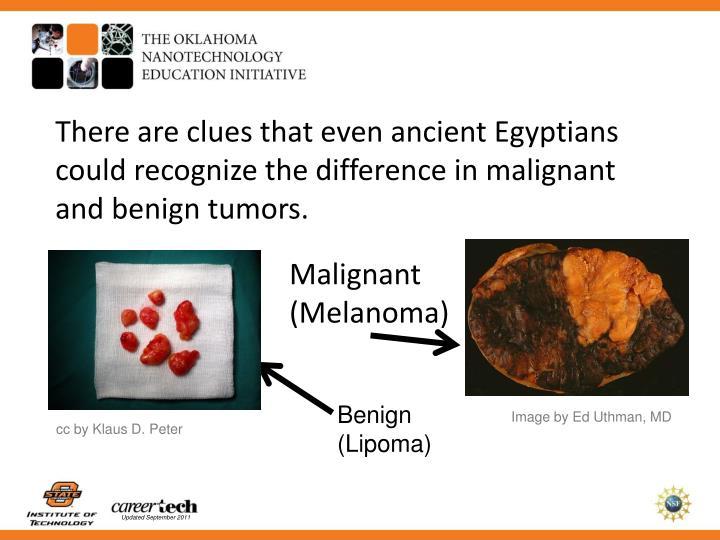 malignant melenoma essay