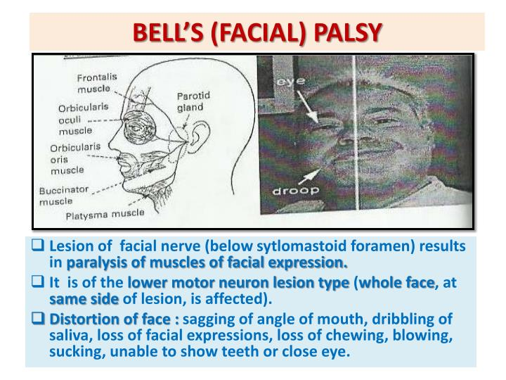 BELL'S (FACIAL) PALSY