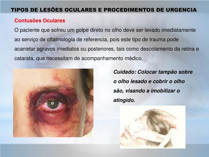 TIPOS DE LESÕES OCULARES E PROCEDIMENTOS DE URGENCIA