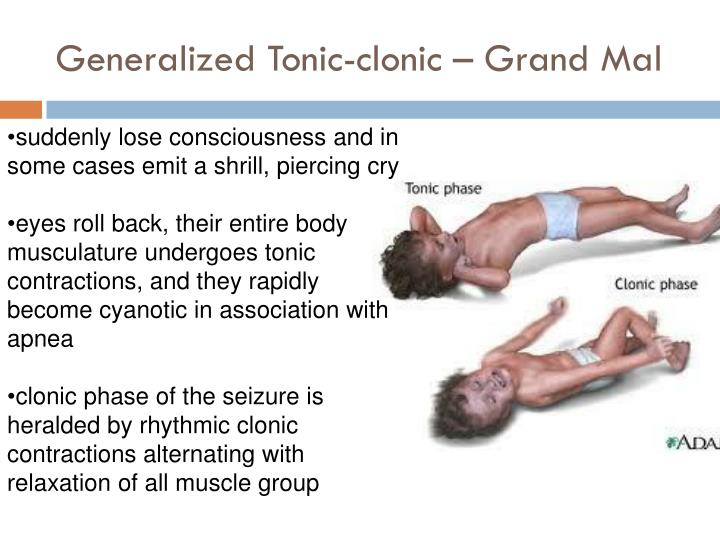 Generalized Tonic-