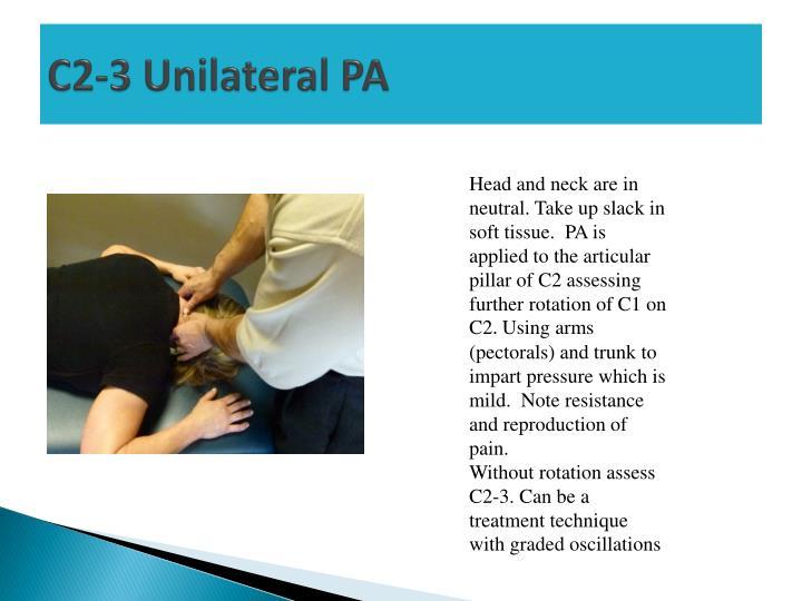C2-3 Unilateral PA