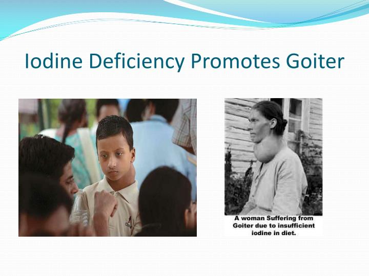 Iodine Deficiency Promotes Goiter