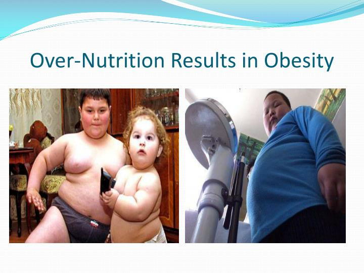 Over-Nutrition Results in Obesity
