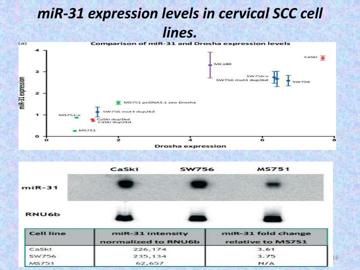 miR-31 expression levels in cervical SCC cell lines.